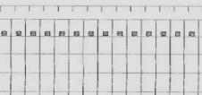震旦AD289机器连续进纸有异响成像有重叠现象